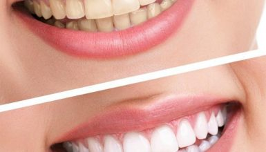 Quel est le meilleur produit de blanchiment dentaire visuel 3